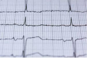 戒菸可降低罹患心臟病的風險